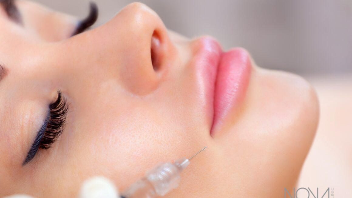 Getting Lip Fillers in Dubai? Here's What You Should Know